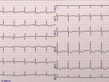 27:350:263:250:188:Electrocardiogram:center:1:1::1:
