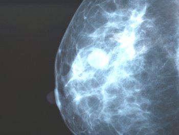 12.7:350:263:250:188:Mammography:center:1:1::1: