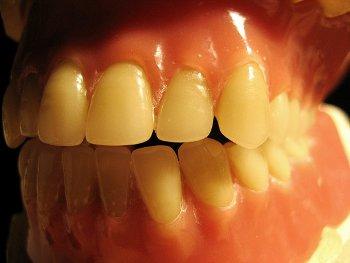 14.1:350:263:250:188:DentalModel:center:1:1::1: