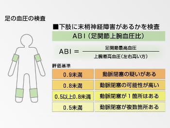 30:350:263:250:188:ABI-inspection:center:1:1::1: